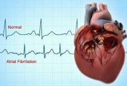 Bryn Mawr Hospital is First on the East Coast to Offer Potential New Treatment Alternative to Patients with Atrial Fibrillation