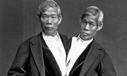 Η περίπτωση των σιαμαίων Τσάνγκ και Ένγκ